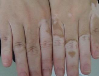 北京治疗白癜风专科医院:手部白癜风怎么正确护理